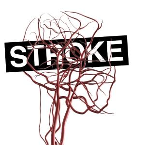 stroke-abdulblogger